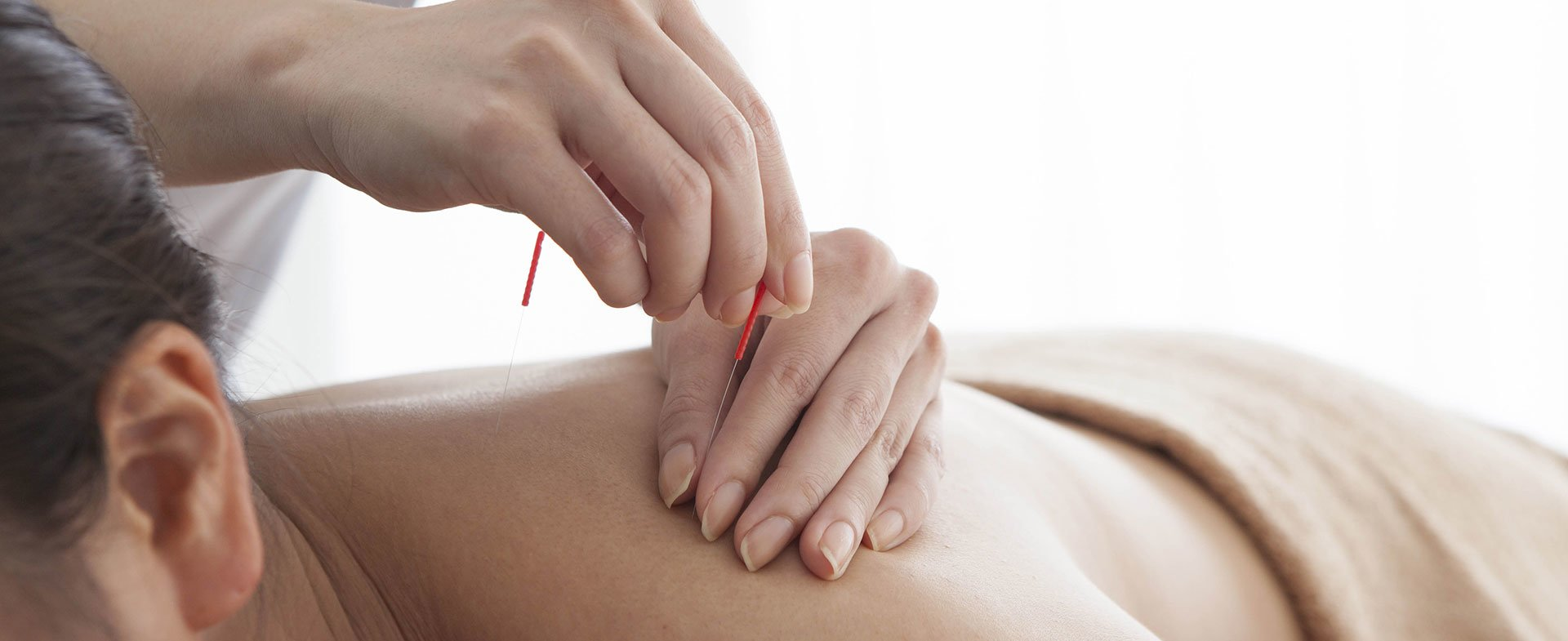 Acupuncture treatment winnipeg