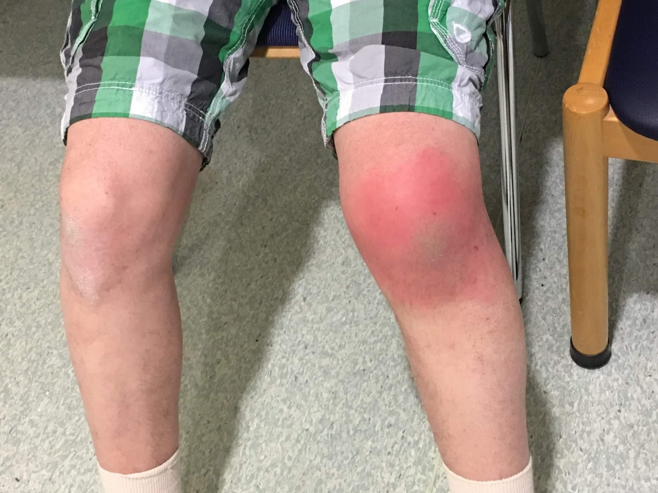 Knee Bursitis chiropractic treatment winnipeg