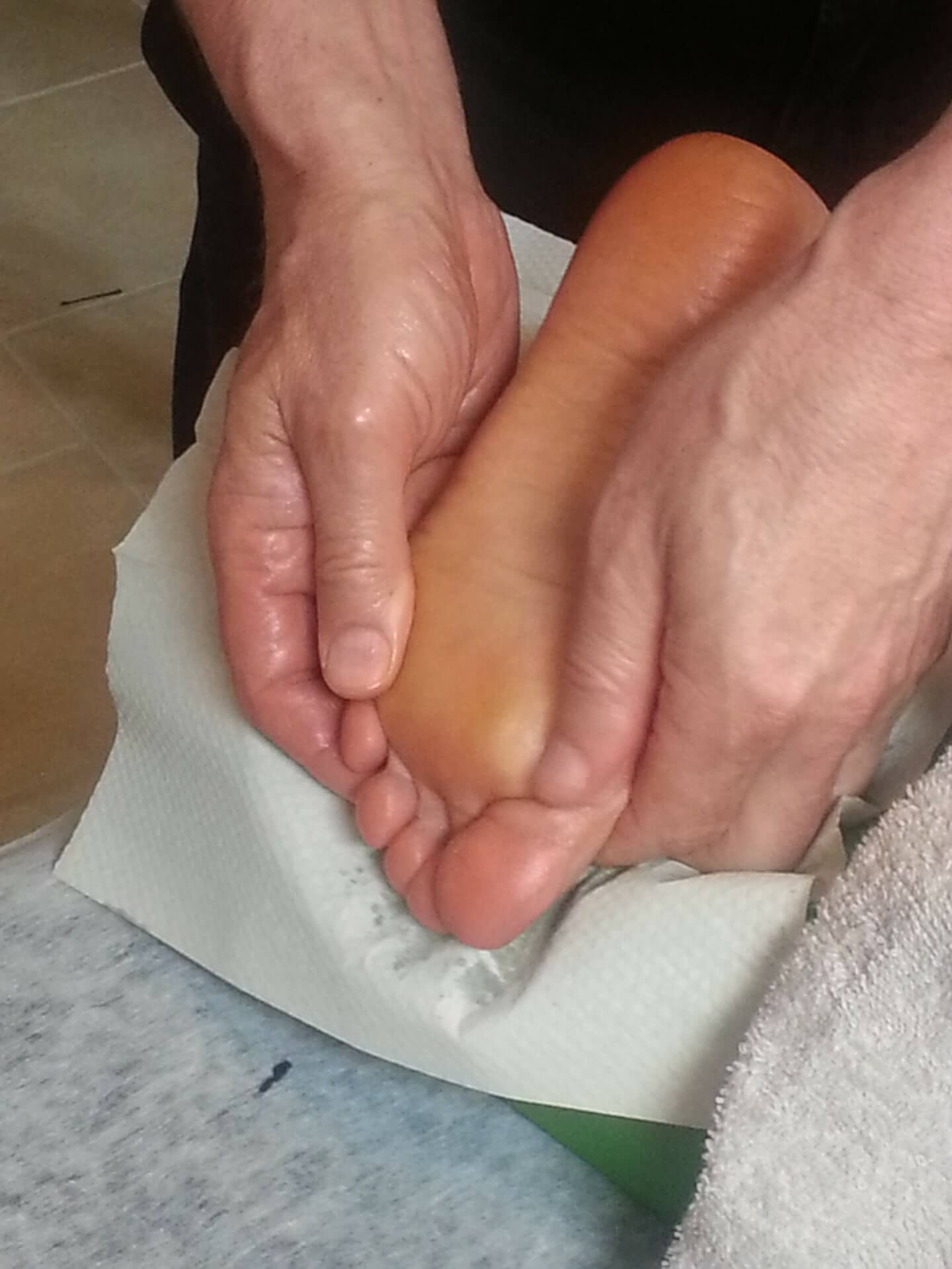 Plantar fasciitis chiropractic treatment winnipeg